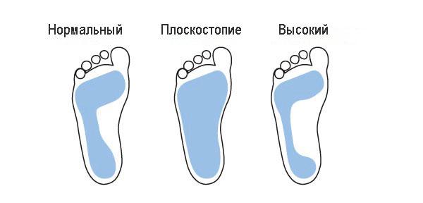 Типы стопы